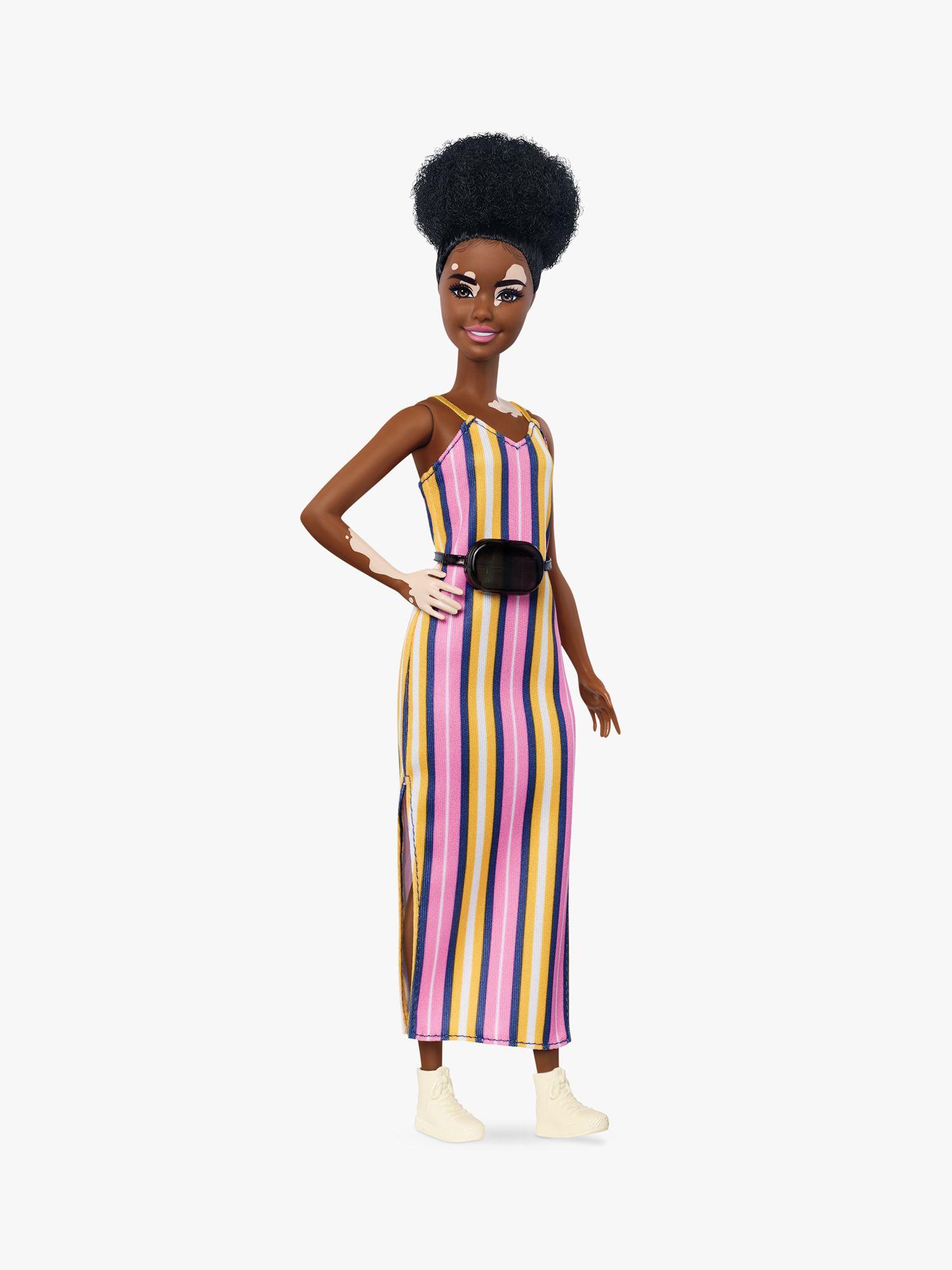 Barbie Barbie Fashionistas Vitiligo Doll